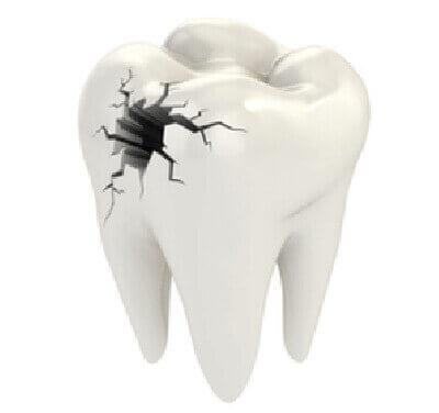 Dents dévitalisées : Attention