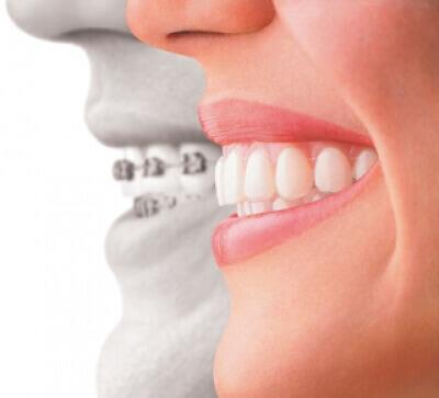 L'orthodontie chez l'enfant et l'adulte