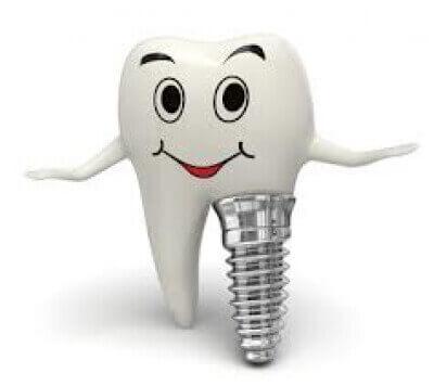 Qu'est-ce-qu'un implant ?